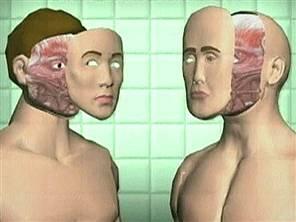 n_face_transplant_051130300w